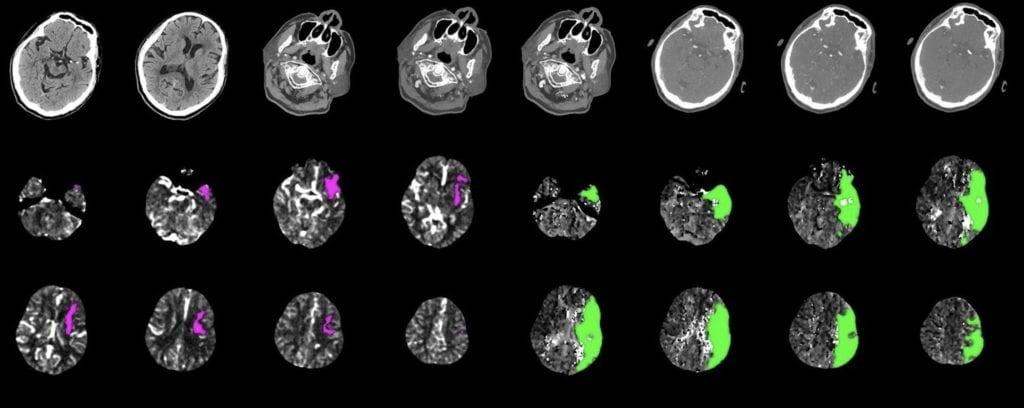 Neuro CTA Image scan